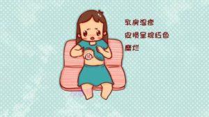 哺乳期得了乳房湿疹 还能继续喂奶吗?